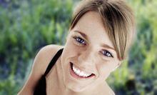 Bleaching - zahnarztpraxis-richard-henschel-aesthetische-zahnheilkunde